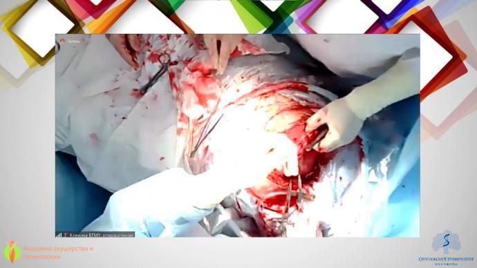 Ящук А.Г. - Органосохраняющие операции при врастании плаценты